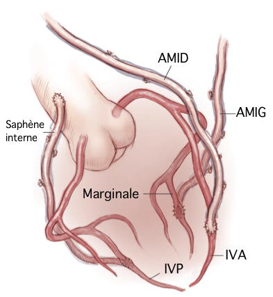 La thrombose des veines superficielles poplité