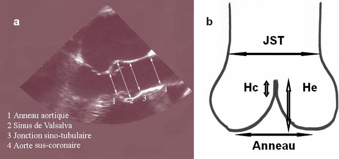 figure 3 - échographie